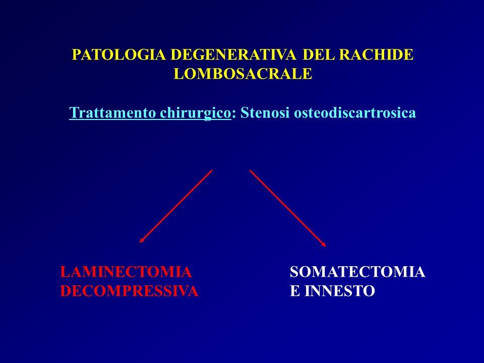 PATOLOGIA DEGENERATIVA DEL RACHIDE LOMBOSACRALE Trattamento chirurgico: Stenosi osteodiscartrosica LAMINECTOMIA SOMATECTOMIA DECOMPRESSIVA E INNESTO