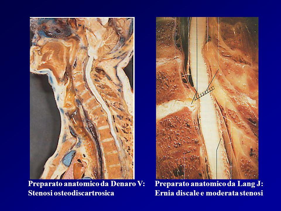 Preparato anatomico da Lang J: Ernia discale e moderata stenosi Preparato anatomico da Denaro V: Stenosi osteodiscartrosica