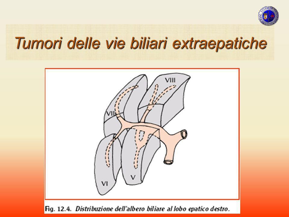CARCINOMI ANATOMIA PATOLOGICA La classificazione di queste neoplasie verte su due aspetti : MORFO-STRUTTURALE TOPOGRAFICO Tumori della VBP