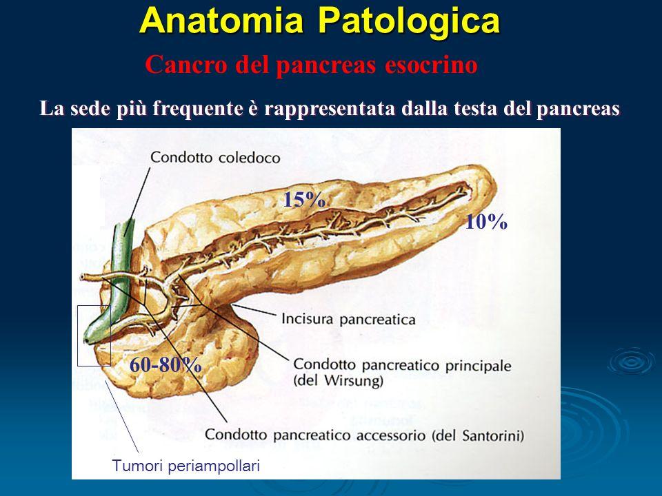 Anatomia Patologica La sede più frequente è rappresentata dalla testa del pancreas 15% 10% Tumori periampollari Cancro del pancreas esocrino 60-80%
