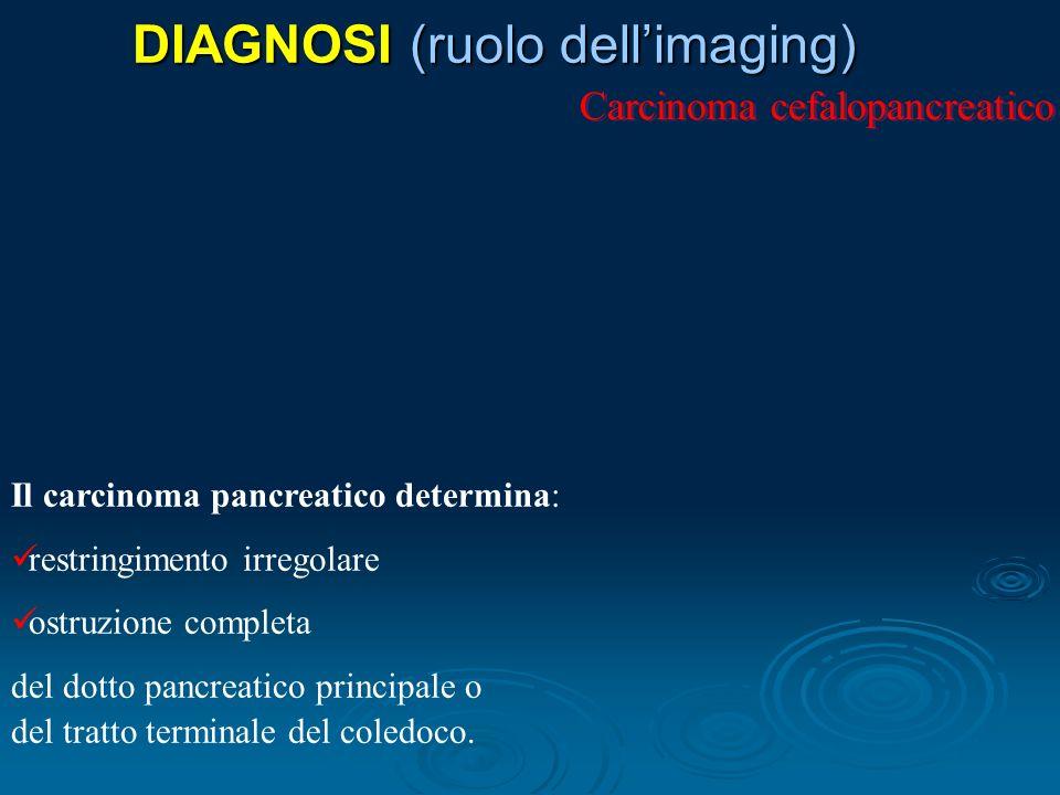 DIAGNOSI (ruolo dellimaging) Carcinoma cefalopancreatico Il carcinoma pancreatico determina: restringimento irregolare ostruzione completa del dotto pancreatico principale o del tratto terminale del coledoco.