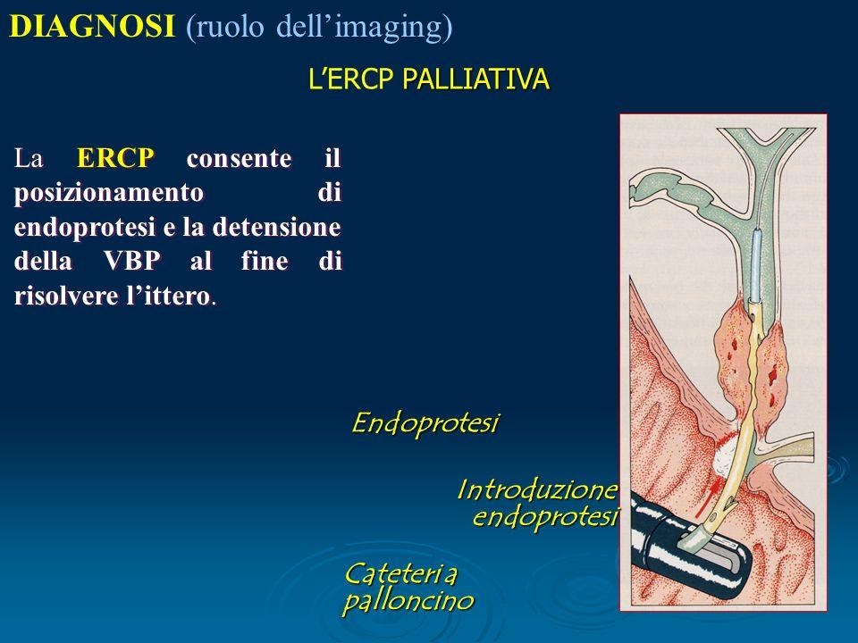 PALLIATIVA LERCP PALLIATIVA La ERCP consente il posizionamento di endoprotesi e la detensione della VBP al fine di risolvere littero.