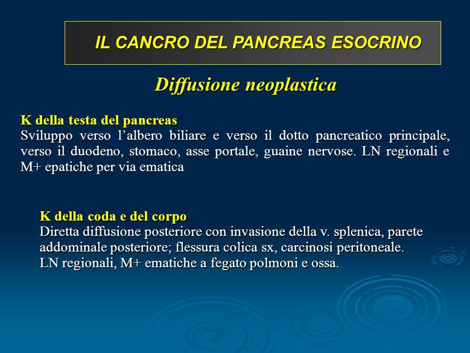 IL CANCRO DEL PANCREAS ESOCRINO K della testa del pancreas Sviluppo verso lalbero biliare e verso il dotto pancreatico principale, verso il duodeno, stomaco, asse portale, guaine nervose.