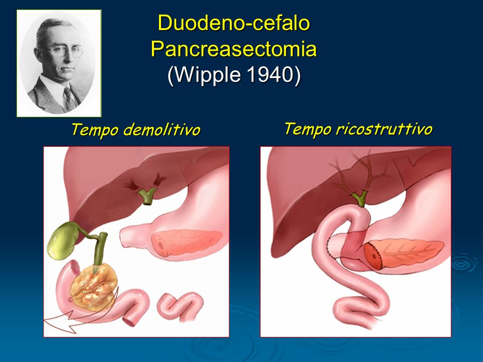 Duodeno-cefalo Pancreasectomia (Wipple 1940) Tempo demolitivo Tempo ricostruttivo