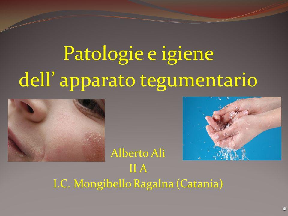 Patologie e igiene dell apparato tegumentario Alberto Alì II A I.C. Mongibello Ragalna (Catania)