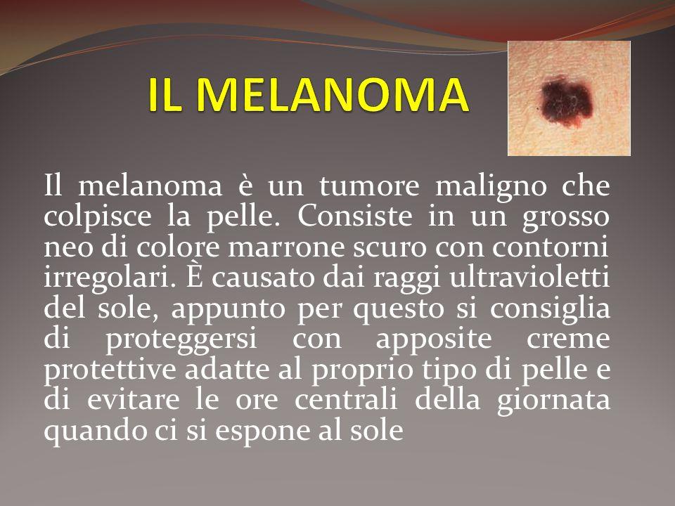 Il melanoma è un tumore maligno che colpisce la pelle. Consiste in un grosso neo di colore marrone scuro con contorni irregolari. È causato dai raggi