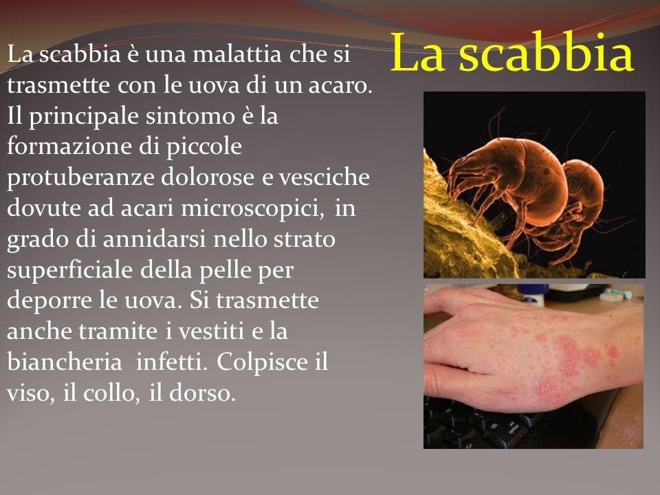 La scabbia La scabbia è una malattia che si trasmette con le uova di un acaro. Il principale sintomo è la formazione di piccole protuberanze dolorose