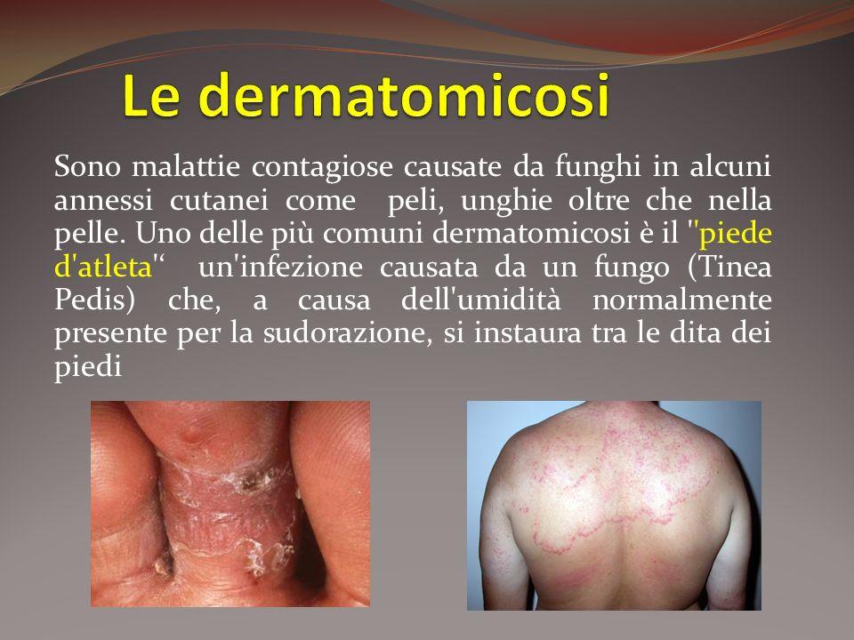 Sono malattie contagiose causate da funghi in alcuni annessi cutanei come peli, unghie oltre che nella pelle. Uno delle più comuni dermatomicosi è il