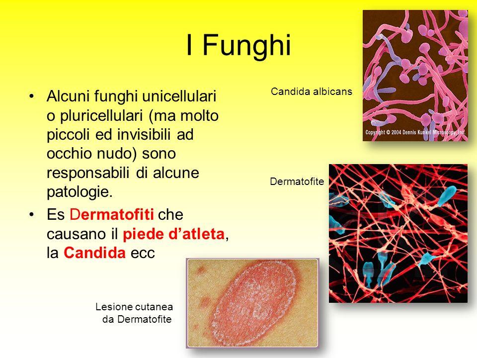 I Funghi Alcuni funghi unicellulari o pluricellulari (ma molto piccoli ed invisibili ad occhio nudo) sono responsabili di alcune patologie. Es Dermato
