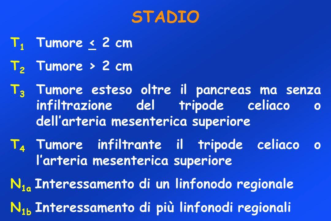 STADIO T 1 Tumore < 2 cm T 2 Tumore > 2 cm T 3 Tumore esteso oltre il pancreas ma senza infiltrazione del tripode celiaco o dellarteria mesenterica superiore T 4 Tumore infiltrante il tripode celiaco o larteria mesenterica superiore N 1a Interessamento di un linfonodo regionale N 1b Interessamento di più linfonodi regionali