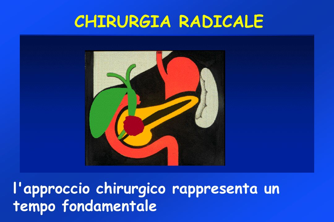 CHIRURGIA RADICALE l approccio chirurgico rappresenta un tempo fondamentale