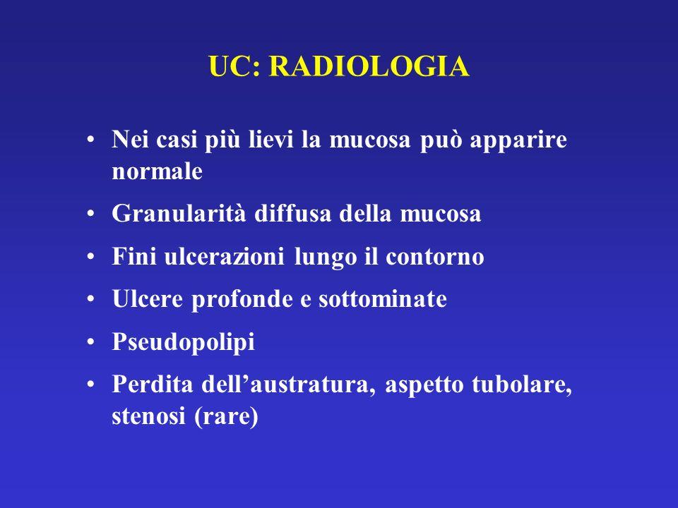 UC: RADIOLOGIA Nei casi più lievi la mucosa può apparire normale Granularità diffusa della mucosa Fini ulcerazioni lungo il contorno Ulcere profonde e