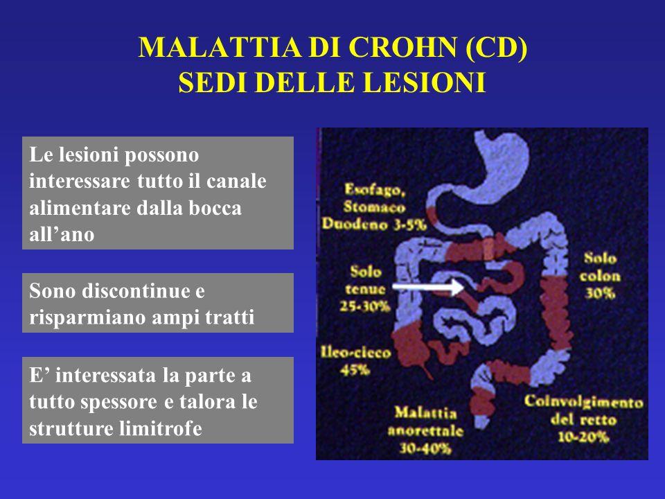 MALATTIA DI CROHN (CD) SEDI DELLE LESIONI Le lesioni possono interessare tutto il canale alimentare dalla bocca allano Sono discontinue e risparmiano