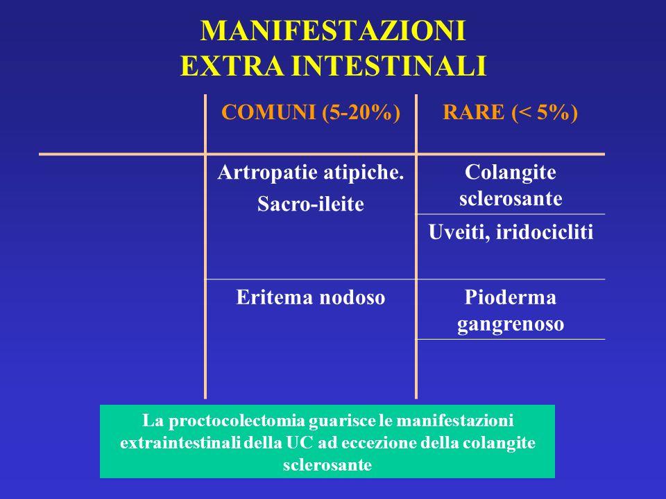 MANIFESTAZIONI EXTRA INTESTINALI COMUNI (5-20%)RARE (< 5%) Artropatie atipiche. Sacro-ileite Colangite sclerosante Uveiti, iridocicliti Eritema nodoso