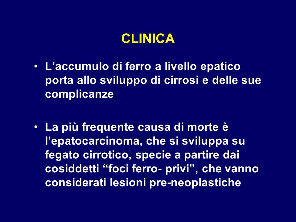 CLINICA Laccumulo di ferro a livello epatico porta allo sviluppo di cirrosi e delle sue complicanze La più frequente causa di morte è lepatocarcinoma,