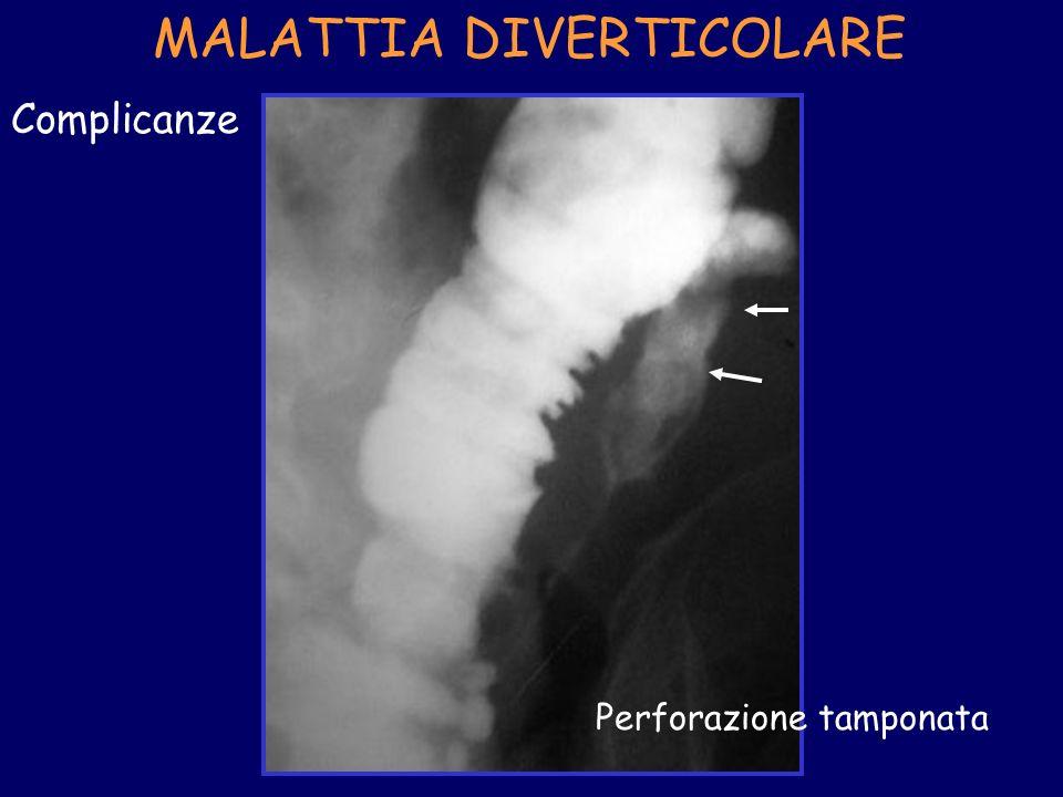 MALATTIA DIVERTICOLARE Complicanze Perforazione tamponata