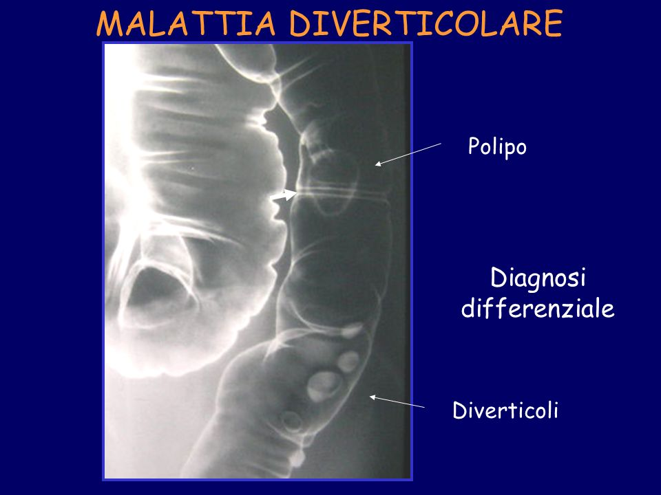 Diagnosi differenziale Polipo Diverticoli