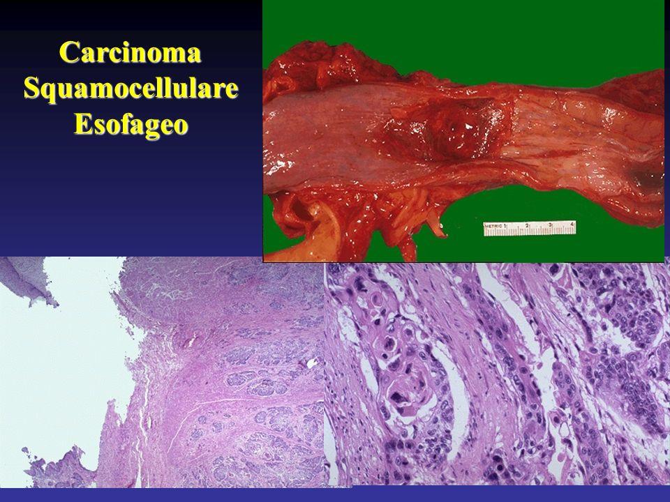 CarcinomaSquamocellulareEsofageo