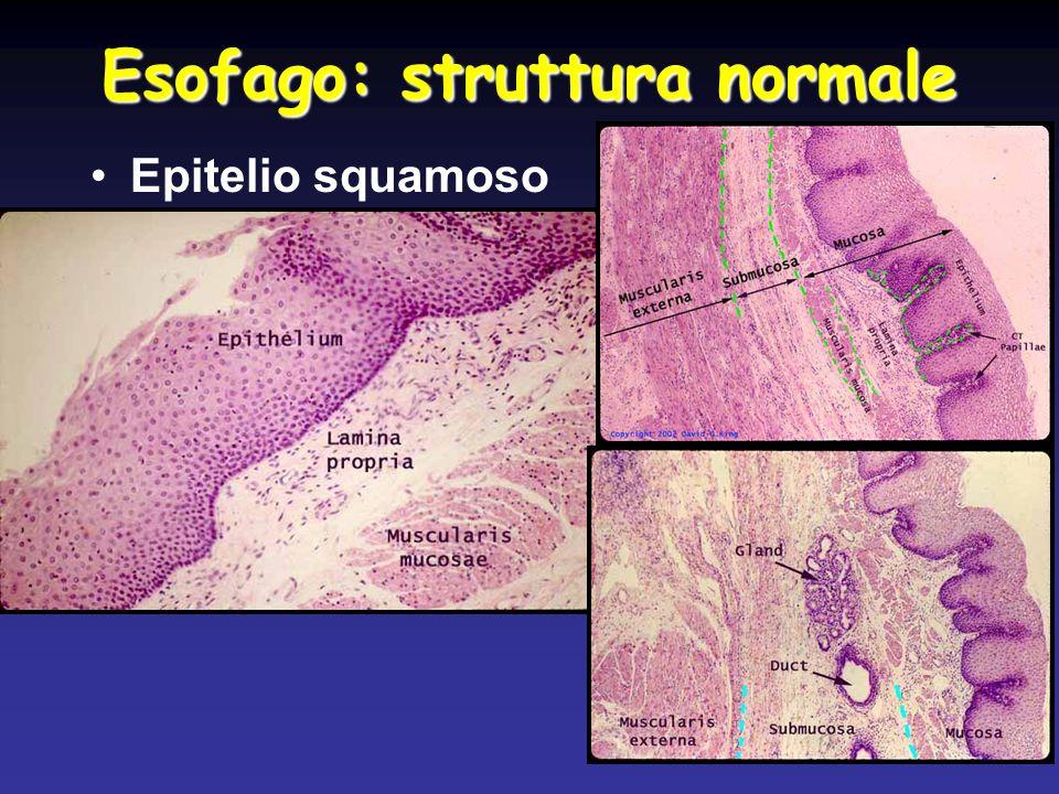 Esofago di Barrett > Adenocarcinoma
