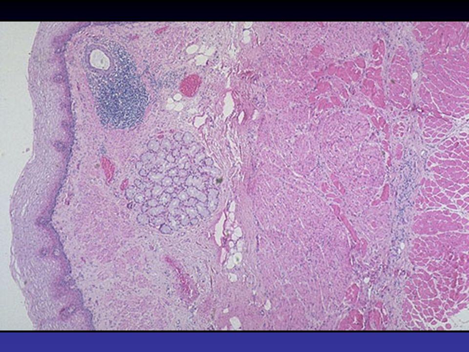 Patogenesi molecolare dellesofago di Barrett Instabilità cromosomica –GERD Acido e Bile > danno tessutale ed infiammazione ROS ed ossido nitrico Danno ossidativo > mutazioni e LOH Adenocarcinoma esofageo: LOH –5q /APC; 9p/p16; 13q/Rb; 17p/p53; 18q/DPC4- Bcl2-DCC