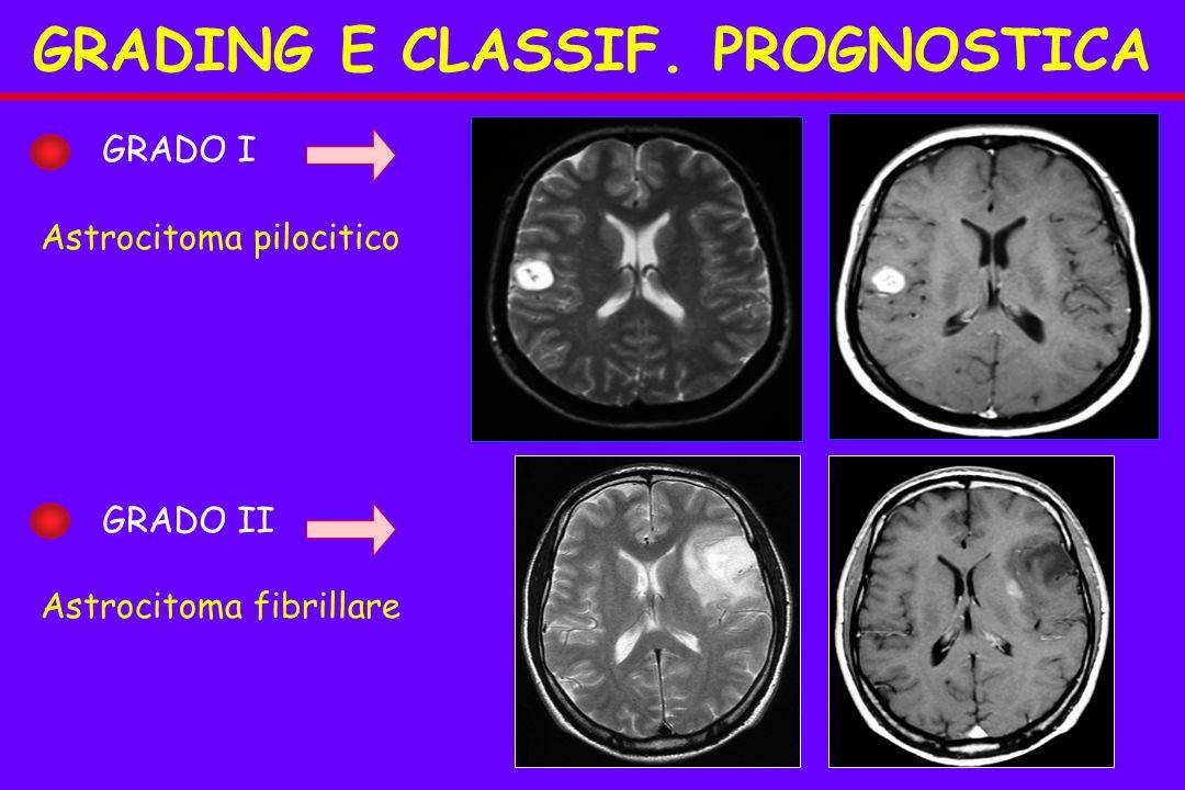 GRADO I GRADO II Astrocitoma pilocitico Astrocitoma fibrillare GRADING E CLASSIF. PROGNOSTICA