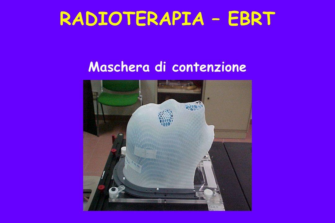 Maschera di contenzione RADIOTERAPIA – EBRT