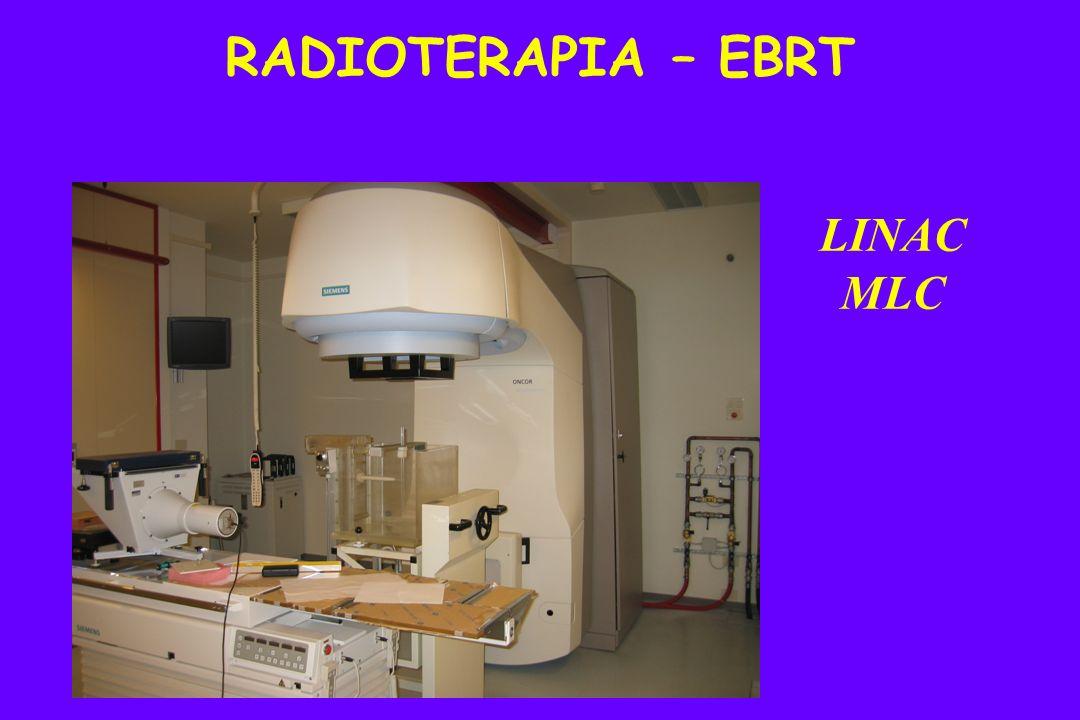LINAC MLC RADIOTERAPIA – EBRT