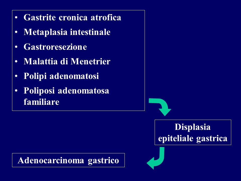 Gastrite cronica atrofica Metaplasia intestinale Gastroresezione Malattia di Menetrier Polipi adenomatosi Poliposi adenomatosa familiare Displasia epi