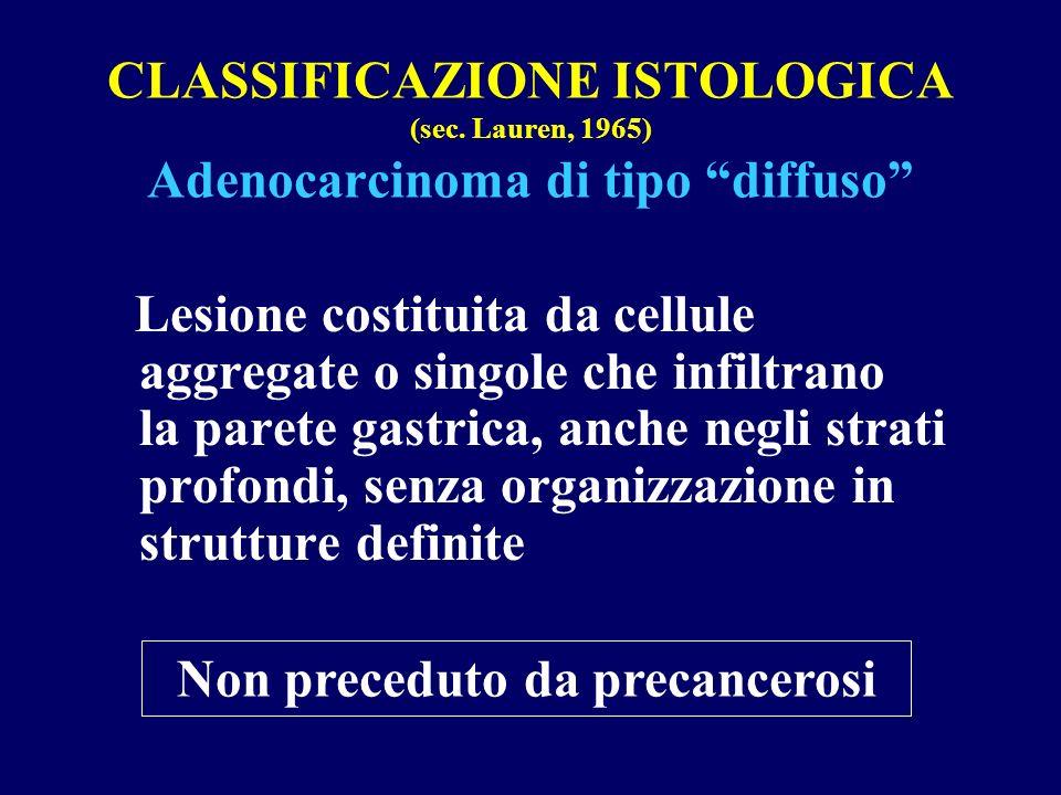 CLASSIFICAZIONE ISTOLOGICA (sec. Lauren, 1965) Adenocarcinoma di tipo diffuso Lesione costituita da cellule aggregate o singole che infiltrano la pare