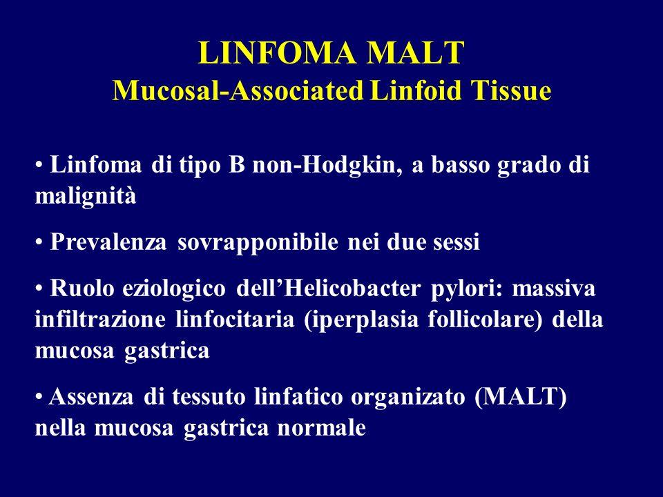 LINFOMA MALT Mucosal-Associated Linfoid Tissue Linfoma di tipo B non-Hodgkin, a basso grado di malignità Prevalenza sovrapponibile nei due sessi Ruolo