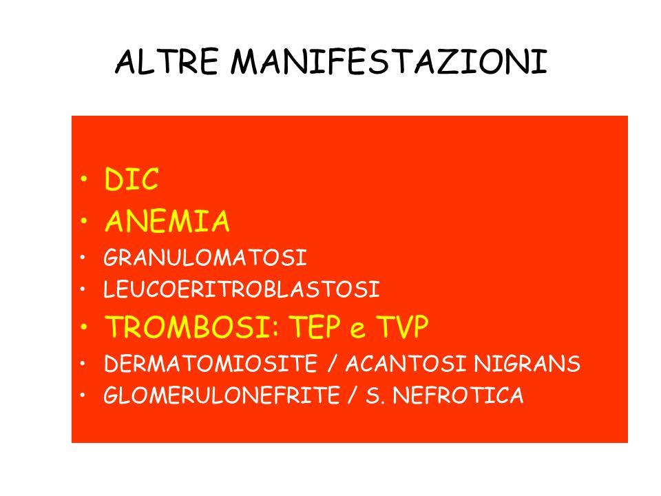 DIC ANEMIA GRANULOMATOSI LEUCOERITROBLASTOSI TROMBOSI: TEP e TVP DERMATOMIOSITE / ACANTOSI NIGRANS GLOMERULONEFRITE / S. NEFROTICA ALTRE MANIFESTAZION