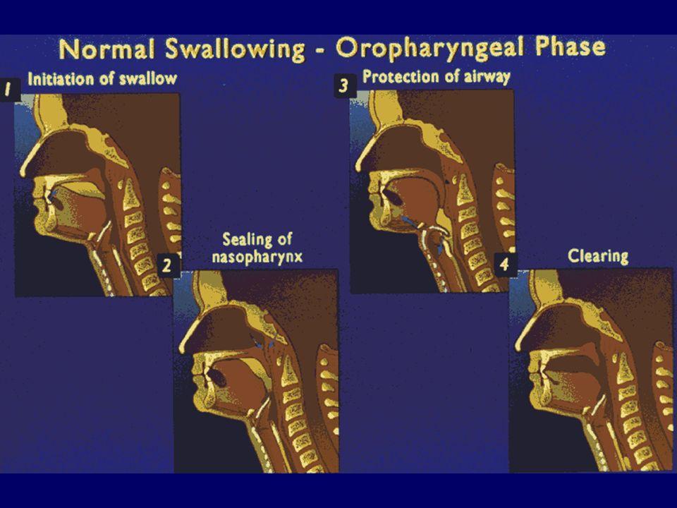 DISFAGIA DIAGNOSI CLINICO-STRUMENTALE ESCLUDERE UNA DISFAGIA MECCANICA (da ostruzione) Rx esofago per studio del transito Esofago-gastro-duodenoscopia DEFINIRE LEZIOLOGIA DELLA DISFAGIA FUNZIONALE Manometria esofagea pH-metria esofagea Scintigrafia esofagea