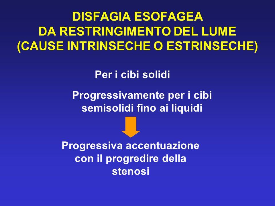 DISFAGIA ESOFAGEA DA RESTRINGIMENTO DEL LUME (CAUSE INTRINSECHE O ESTRINSECHE) Per i cibi solidi Progressivamente per i cibi semisolidi fino ai liquid