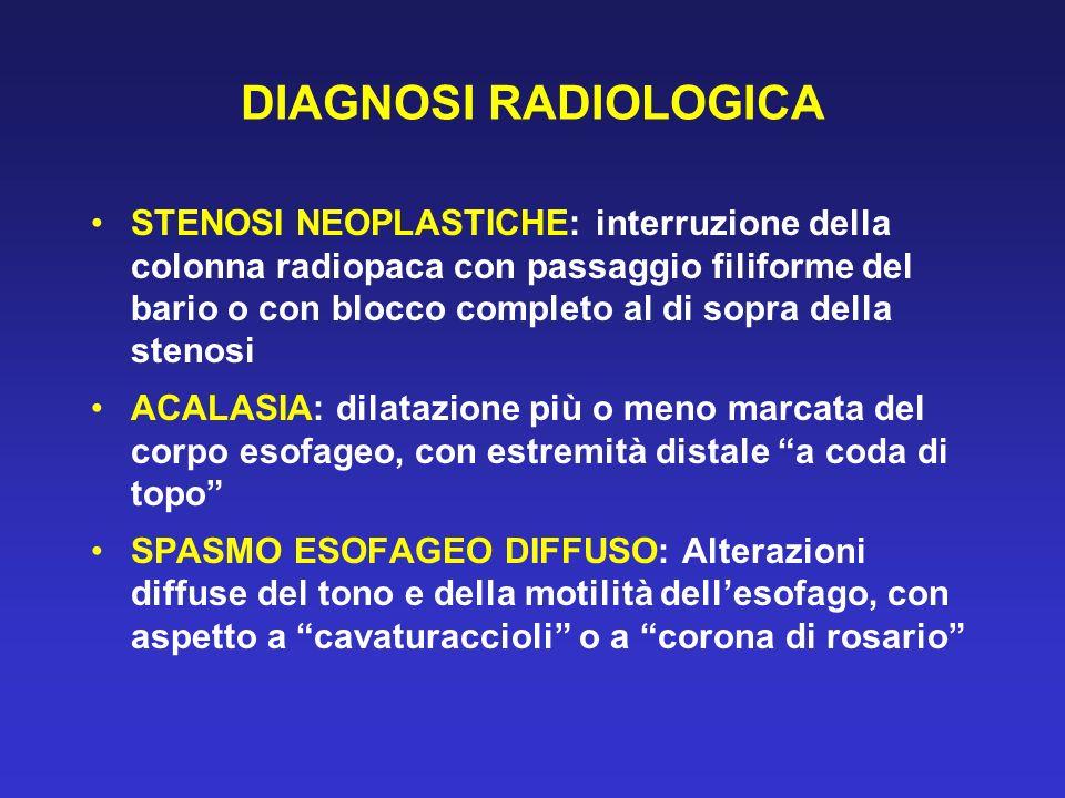 DIAGNOSI RADIOLOGICA STENOSI NEOPLASTICHE: interruzione della colonna radiopaca con passaggio filiforme del bario o con blocco completo al di sopra de