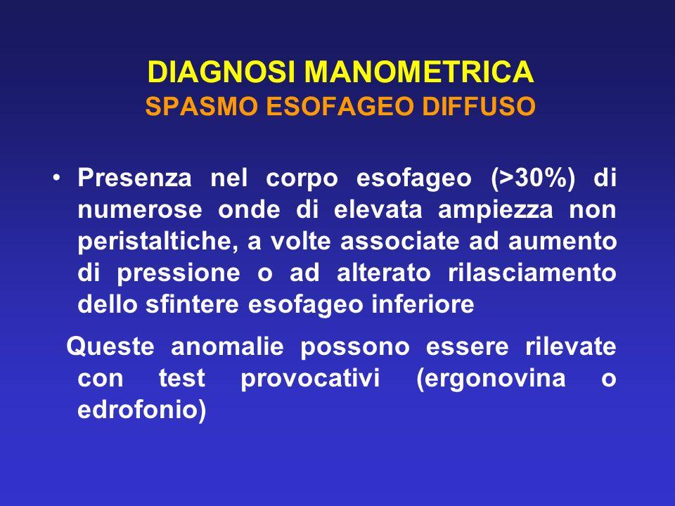 DIAGNOSI MANOMETRICA SPASMO ESOFAGEO DIFFUSO Presenza nel corpo esofageo (>30%) di numerose onde di elevata ampiezza non peristaltiche, a volte associ