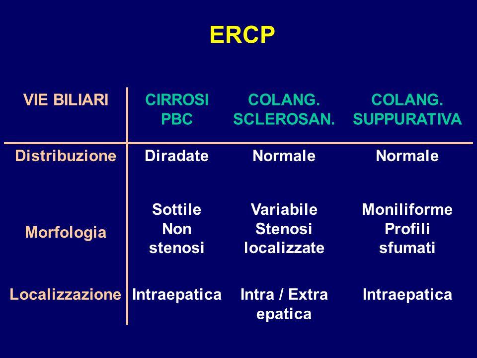 ERCP VIE BILIARICIRROSI PBC COLANG. SCLEROSAN. COLANG. SUPPURATIVA DistribuzioneDiradateNormale Morfologia Sottile Non stenosi Variabile Stenosi local