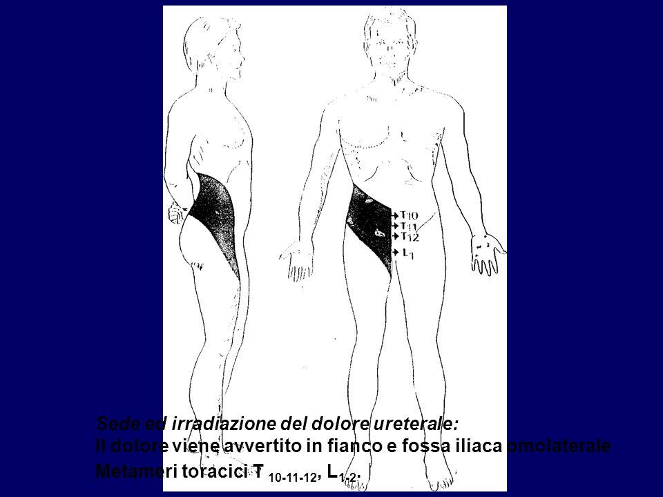 Sede ed irradiazione del dolore ureterale: Il dolore viene avvertito in fianco e fossa iliaca omolaterale Metameri toracici T 10-11-12, L 1-2.