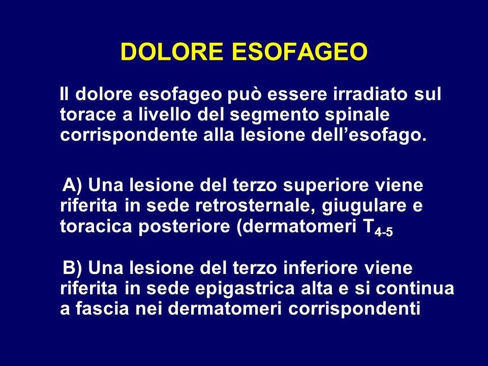 DOLORE ESOFAGEO Il dolore esofageo può essere irradiato sul torace a livello del segmento spinale corrispondente alla lesione dellesofago. A) Una lesi