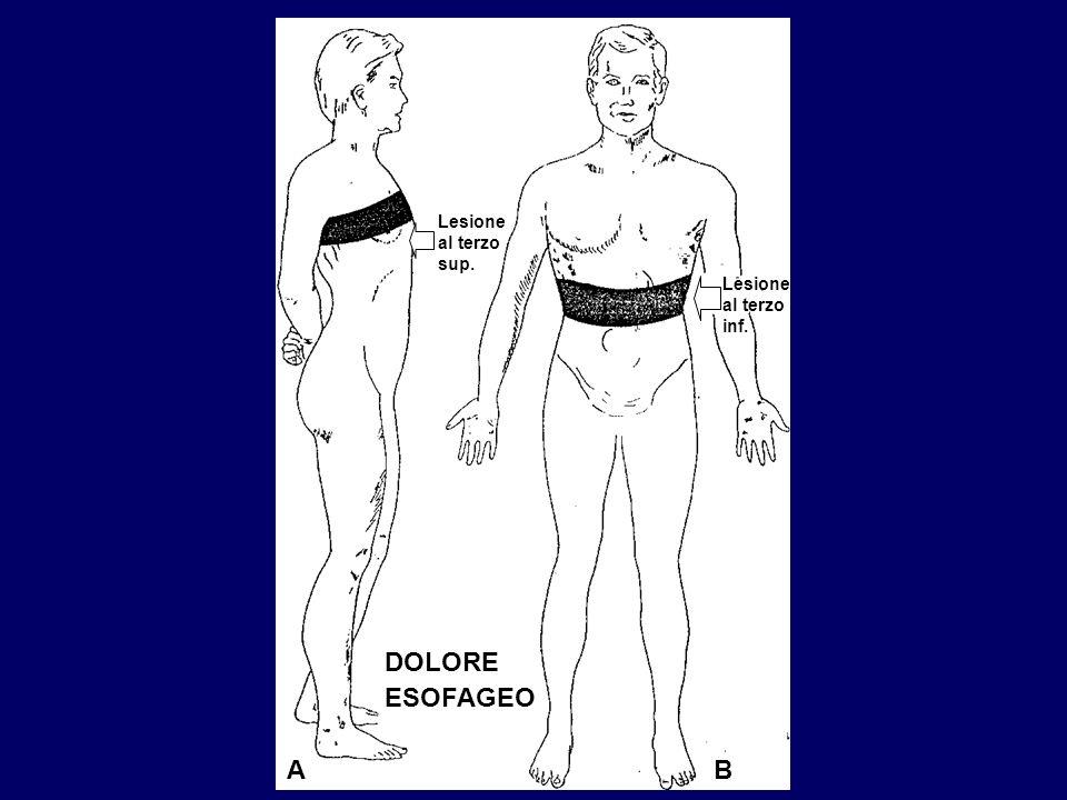 DOLORE ESOFAGEO Lesione al terzo sup. Lesione al terzo inf. AB