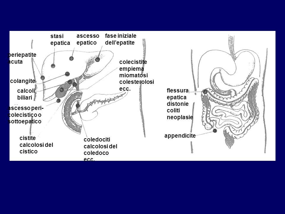 stasi epatica ascesso epatico fase iniziale dellepatite colecistite empiema miomatosi colesterolosi ecc. periepatite acuta colangite calcoli biliari a
