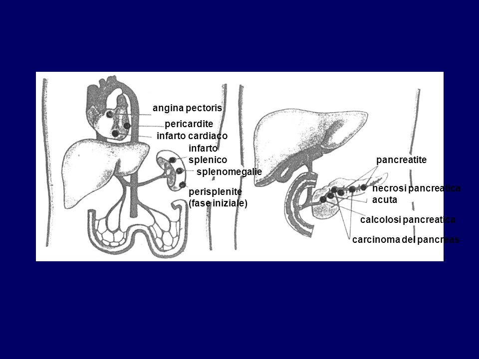 angina pectoris pericardite infarto cardiaco infarto splenico splenomegalie perisplenite (fase iniziale) pancreatite necrosi pancreatica acuta calcolo