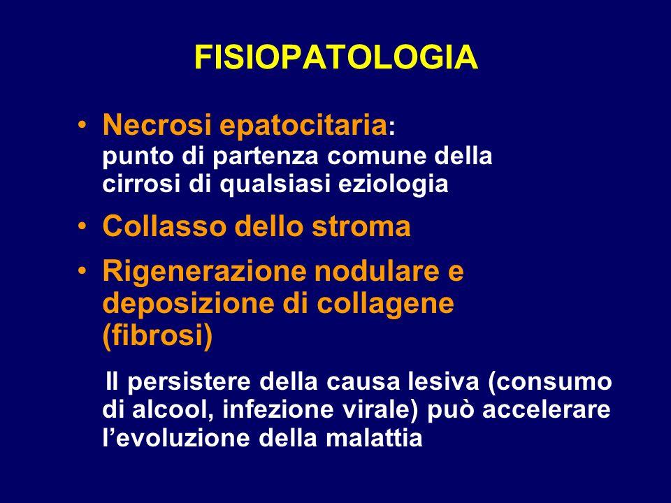 FISIOPATOLOGIA Necrosi epatocitaria : punto di partenza comune della cirrosi di qualsiasi eziologia Collasso dello stroma Rigenerazione nodulare e dep