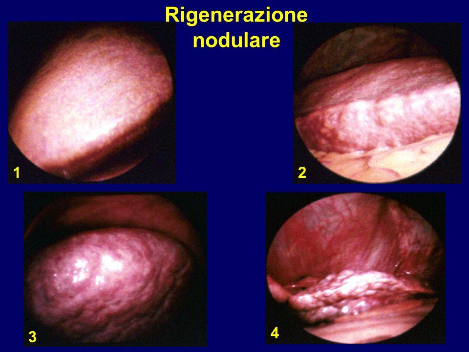 Rigenerazione nodulare 12 3 4