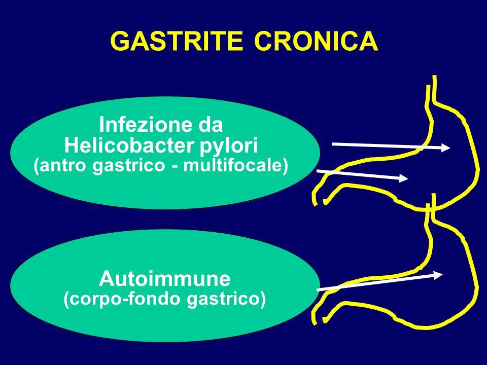 GASTRITE CRONICA Infezione da Helicobacter pylori (antro gastrico - multifocale) Autoimmune (corpo-fondo gastrico)