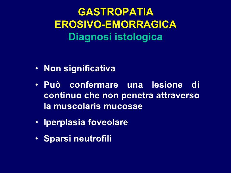 GASTROPATIA EROSIVO-EMORRAGICA Diagnosi istologica Non significativa Può confermare una lesione di continuo che non penetra attraverso la muscolaris m