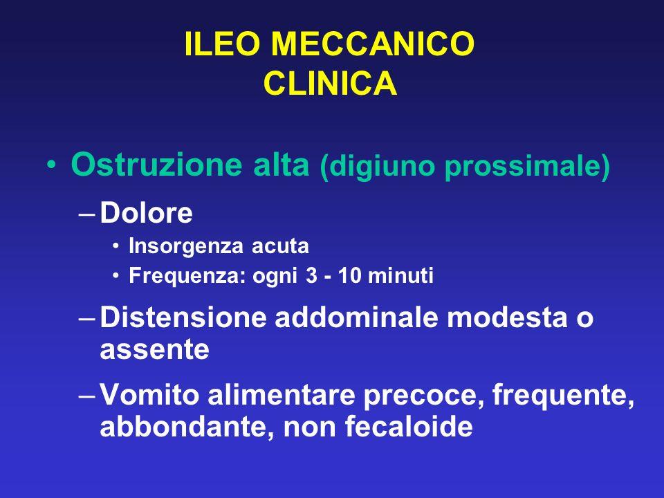 ILEO MECCANICO CLINICA Ostruzione alta (digiuno prossimale) –Dolore Insorgenza acuta Frequenza: ogni 3 - 10 minuti –Distensione addominale modesta o a