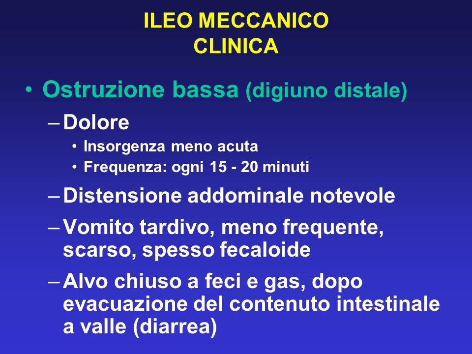 ILEO MECCANICO CLINICA Ostruzione bassa (digiuno distale) –Dolore Insorgenza meno acuta Frequenza: ogni 15 - 20 minuti –Distensione addominale notevol