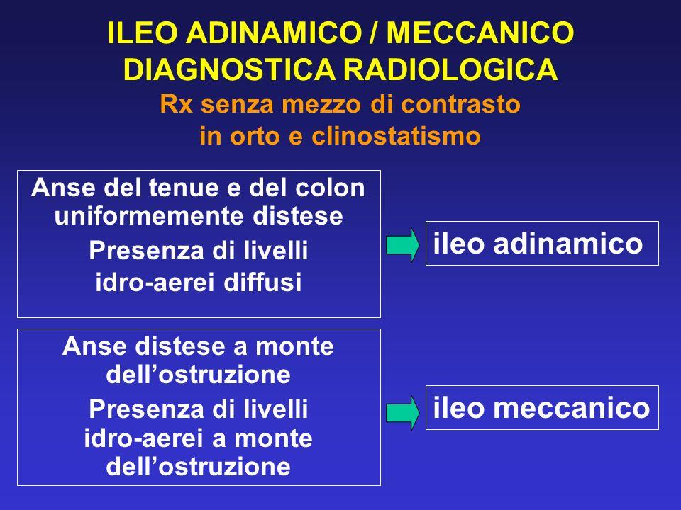 ILEO ADINAMICO / MECCANICO DIAGNOSTICA RADIOLOGICA Rx senza mezzo di contrasto in orto e clinostatismo Anse del tenue e del colon uniformemente distes