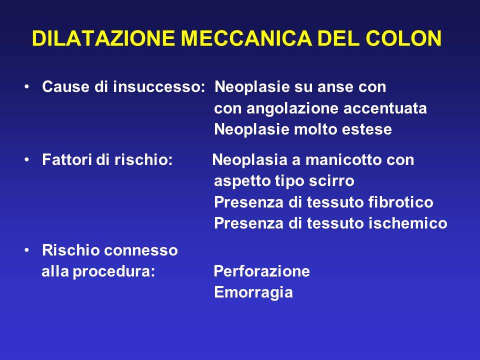 DILATAZIONE MECCANICA DEL COLON Cause di insuccesso: Neoplasie su anse con con angolazione accentuata Neoplasie molto estese Fattori di rischio: Neopl