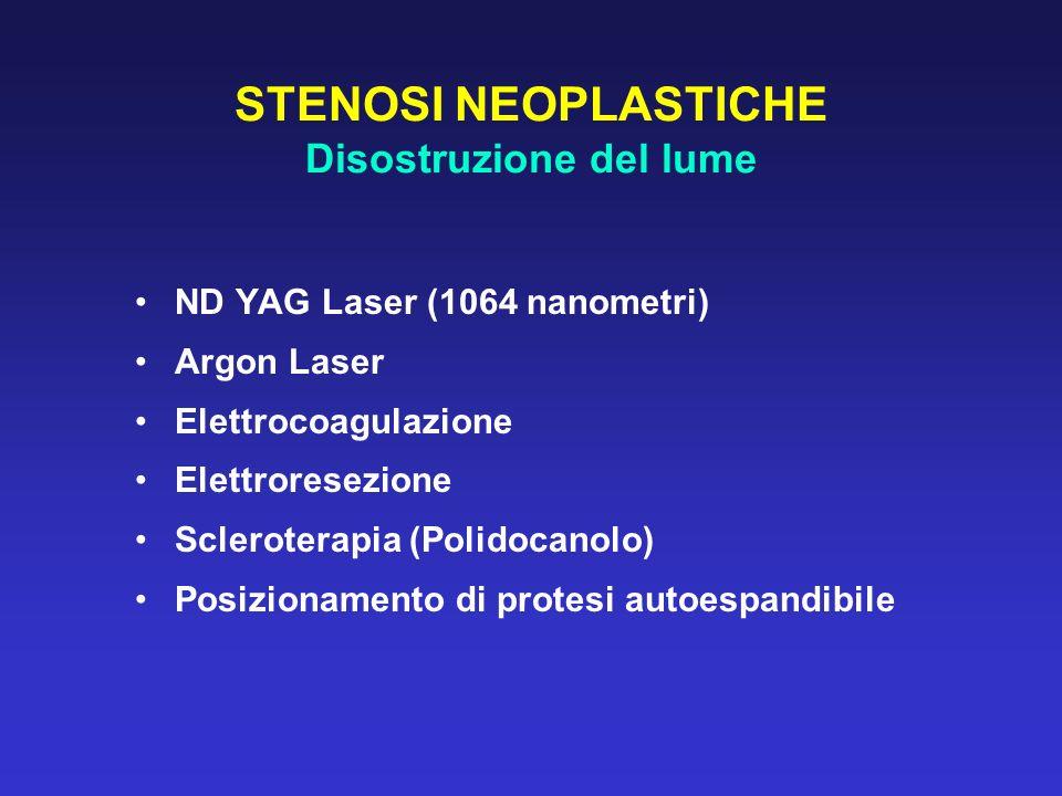 STENOSI NEOPLASTICHE Disostruzione del lume ND YAG Laser (1064 nanometri) Argon Laser Elettrocoagulazione Elettroresezione Scleroterapia (Polidocanolo